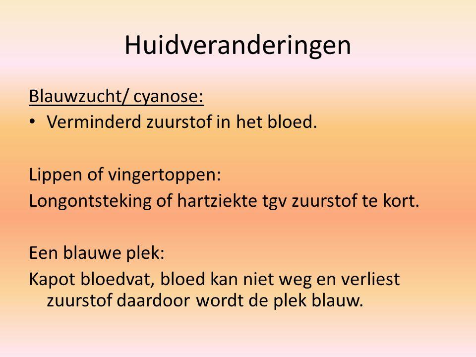 Huidveranderingen Blauwzucht/ cyanose: Verminderd zuurstof in het bloed. Lippen of vingertoppen: Longontsteking of hartziekte tgv zuurstof te kort. Ee