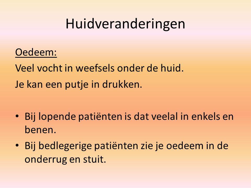 Huidveranderingen Huidturgor: Verminderde turgor wil zeggen uitdroging van de patiënt.