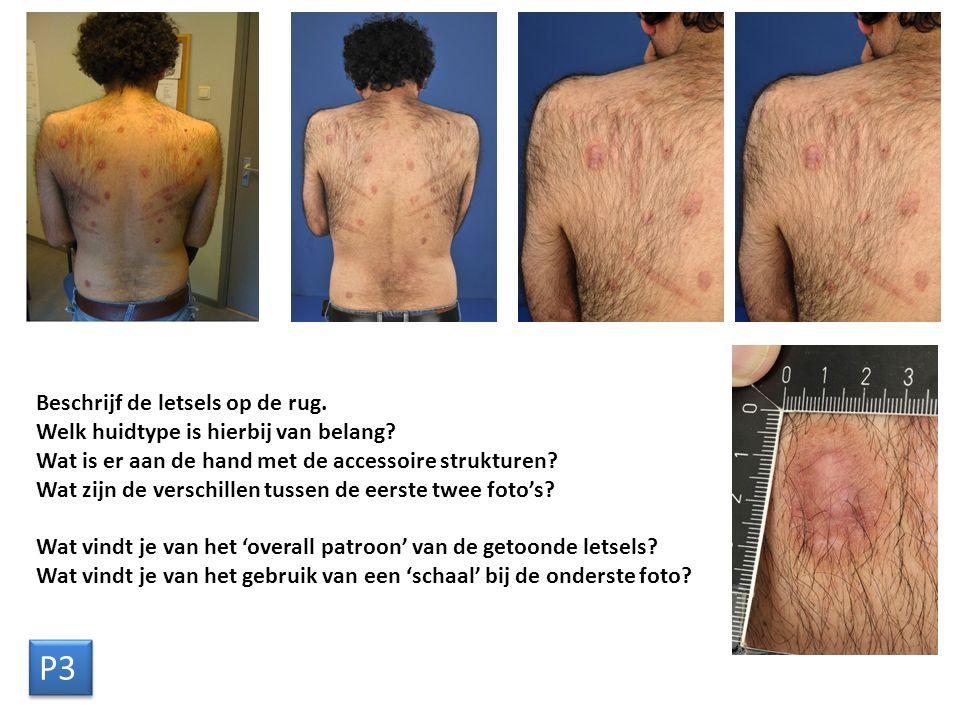 Beschrijf de letsels op de rug. Welk huidtype is hierbij van belang.