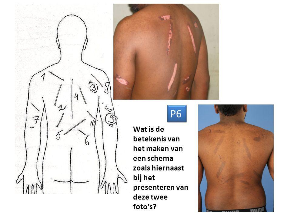 P7 Beschrijf de medische toestand op de foto hierboven.