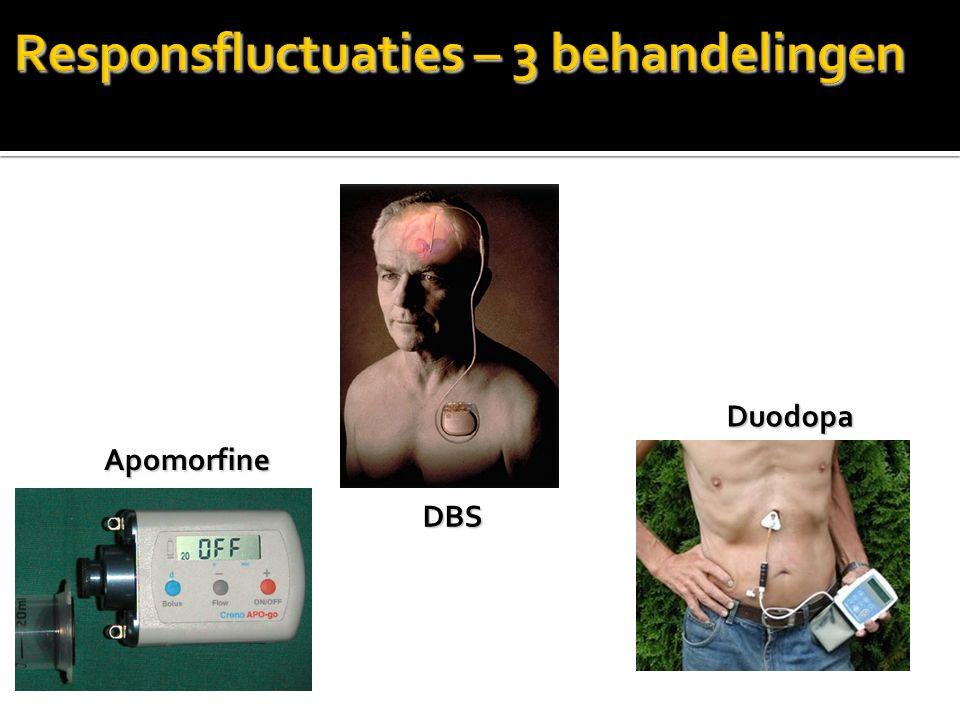 DBS Apomorfine Duodopa