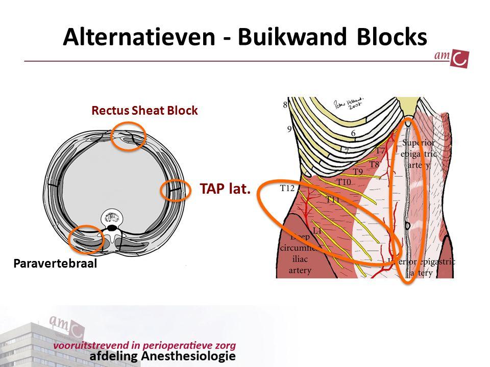 Alternatieven - Buikwand Blocks Rectus Sheat Block TAP lat. Paravertebraal