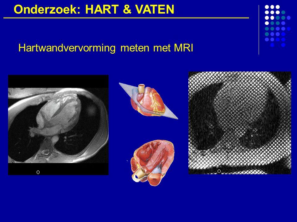Onderzoek: HART & VATEN Hartwandvervorming meten met MRI