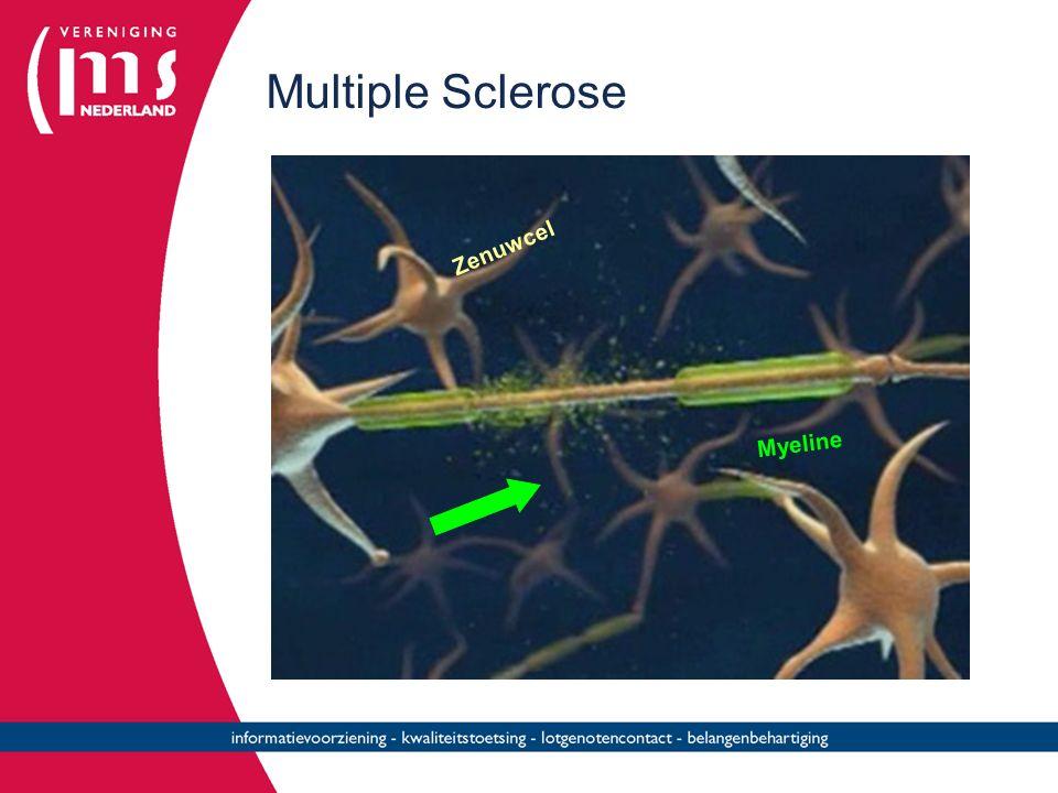 Multiple Sclerose Myeline Zenuwcel