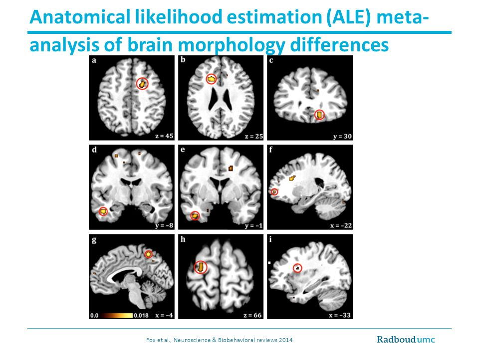 Anatomical likelihood estimation (ALE) meta- analysis of brain morphology differences Fox et al., Neuroscience & Biobehavioral reviews 2014