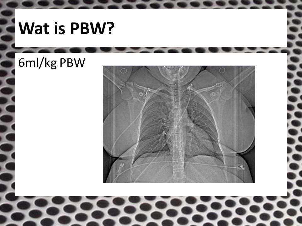 Wat is PBW? 6ml/kg PBW