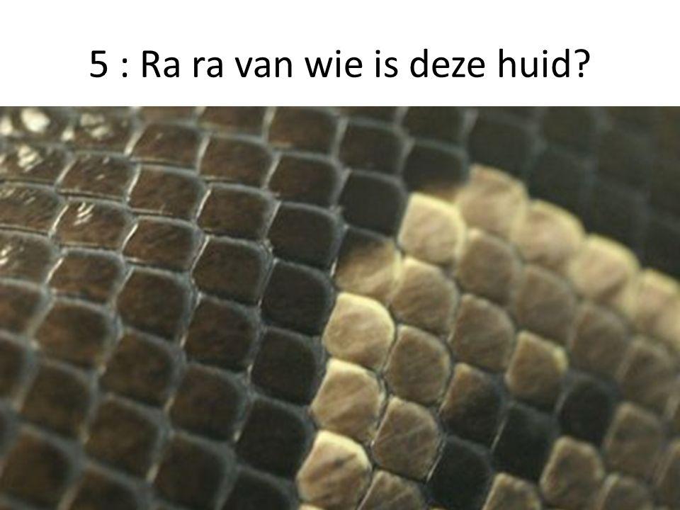 5 : Ra ra van wie is deze huid?