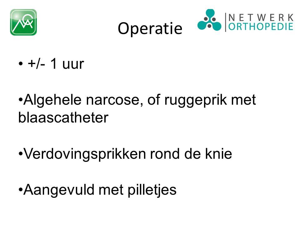 Operatie +/- 1 uur Algehele narcose, of ruggeprik met blaascatheter Verdovingsprikken rond de knie Aangevuld met pilletjes