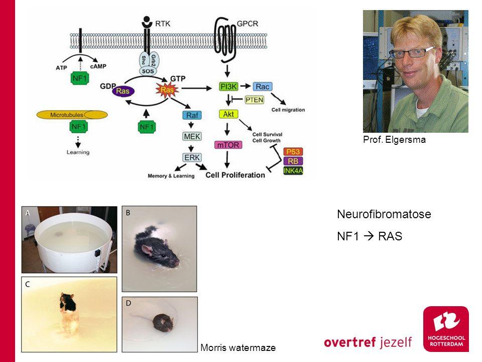 Neurofibromatose NF1  RAS Prof. Elgersma Morris watermaze