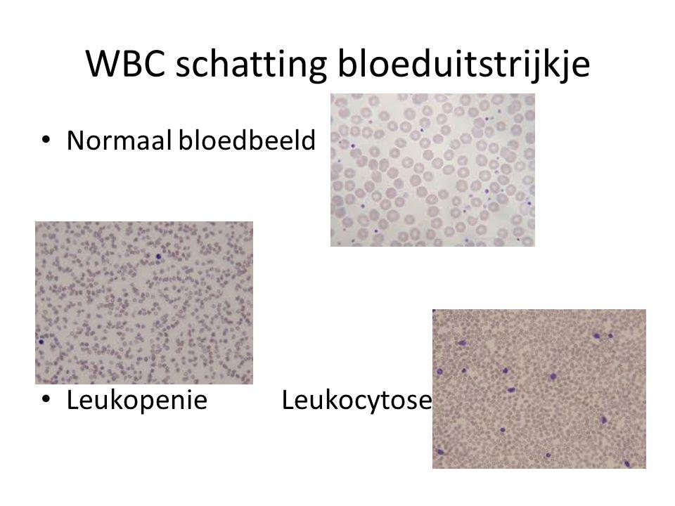 WBC schatting bloeduitstrijkje Normaal bloedbeeld Leukopenie Leukocytose