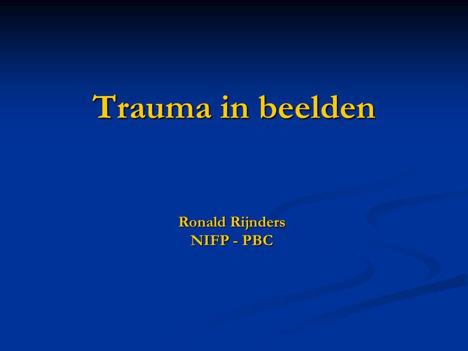 Trauma in beelden Ronald Rijnders NIFP - PBC