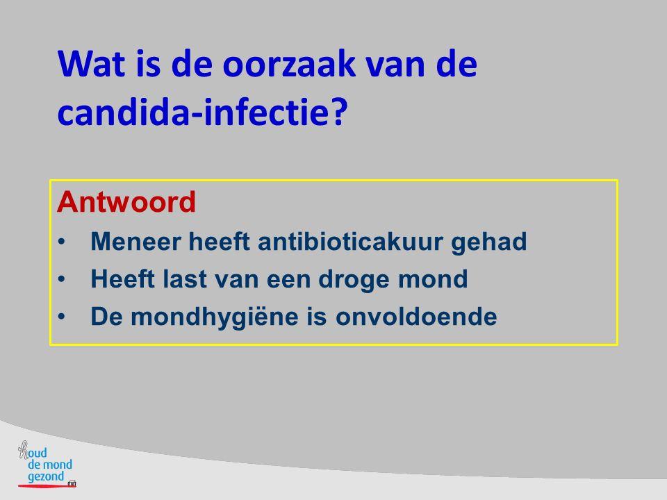Wat is de oorzaak van de candida-infectie? Antwoord Meneer heeft antibioticakuur gehad Heeft last van een droge mond De mondhygiëne is onvoldoende