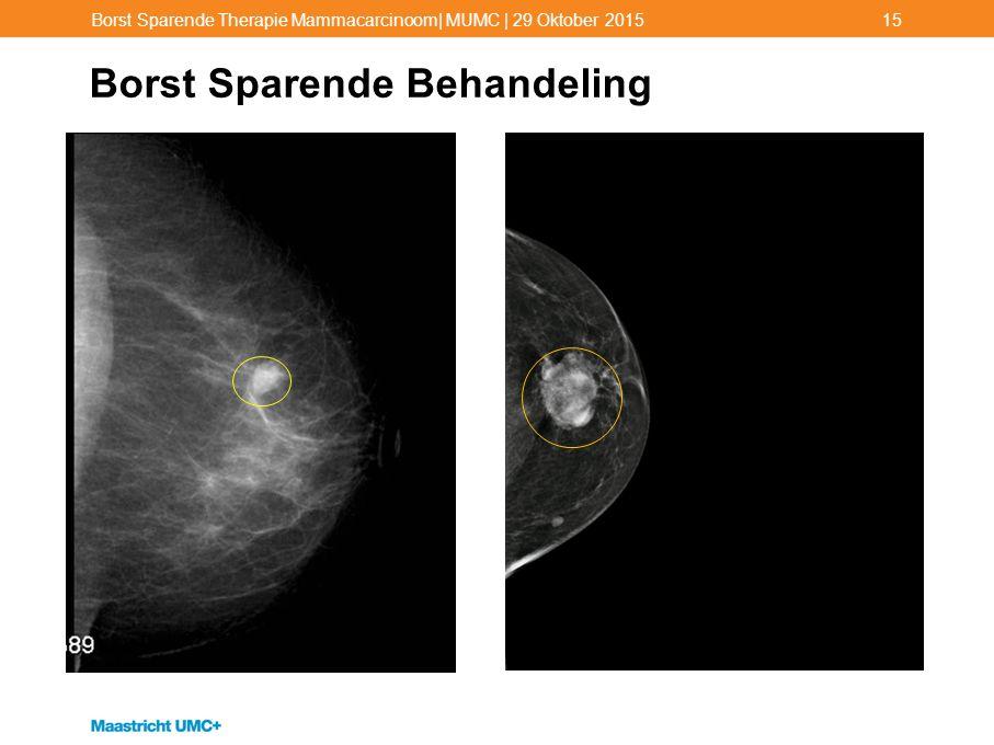 Borst Sparende Behandeling Borst Sparende Therapie Mammacarcinoom| MUMC | 29 Oktober 201515