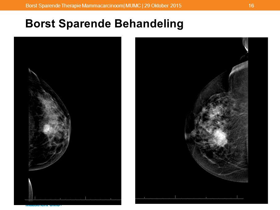 Borst Sparende Behandeling Borst Sparende Therapie Mammacarcinoom| MUMC | 29 Oktober 201516