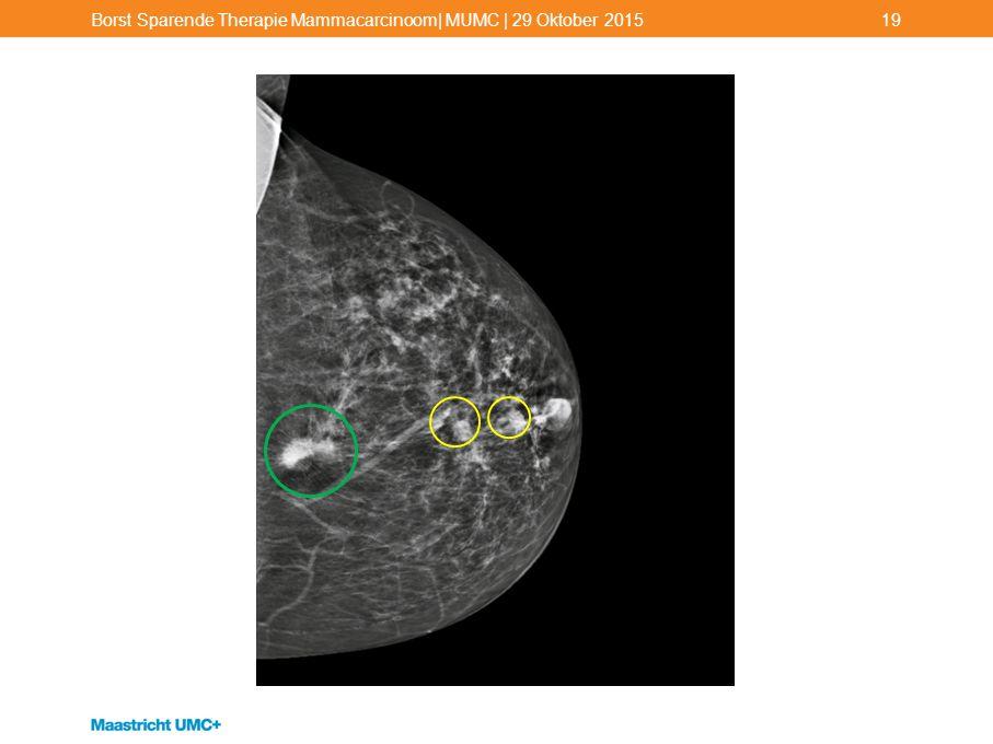 Borst Sparende Therapie Mammacarcinoom| MUMC | 29 Oktober 201519