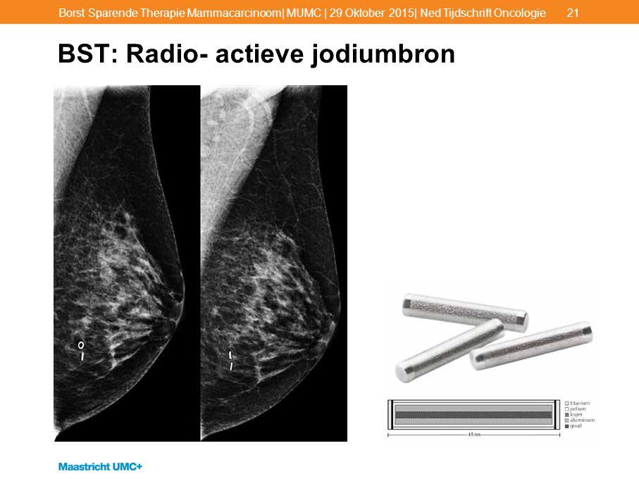 BST: Radio- actieve jodiumbron Borst Sparende Therapie Mammacarcinoom| MUMC | 29 Oktober 2015| Ned Tijdschrift Oncologie21