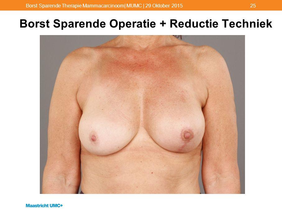 Borst Sparende Operatie + Reductie Techniek Borst Sparende Therapie Mammacarcinoom| MUMC | 29 Oktober 201525