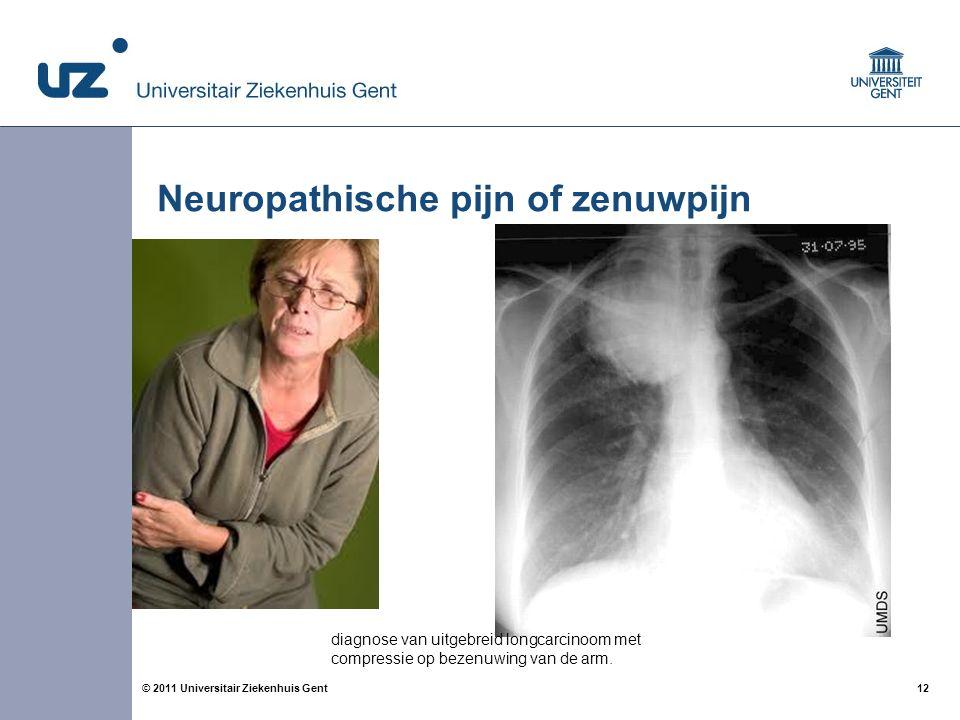 12© 2011 Universitair Ziekenhuis Gent Neuropathische pijn of zenuwpijn diagnose van uitgebreid longcarcinoom met compressie op bezenuwing van de arm.