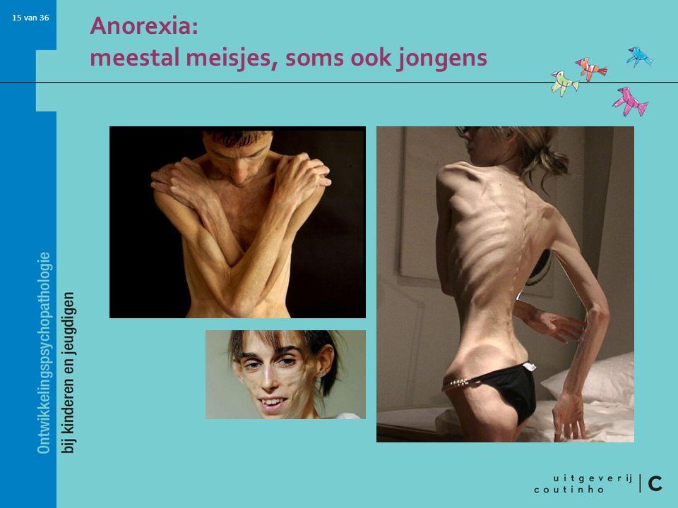 15 van 36 Anorexia: meestal meisjes, soms ook jongens