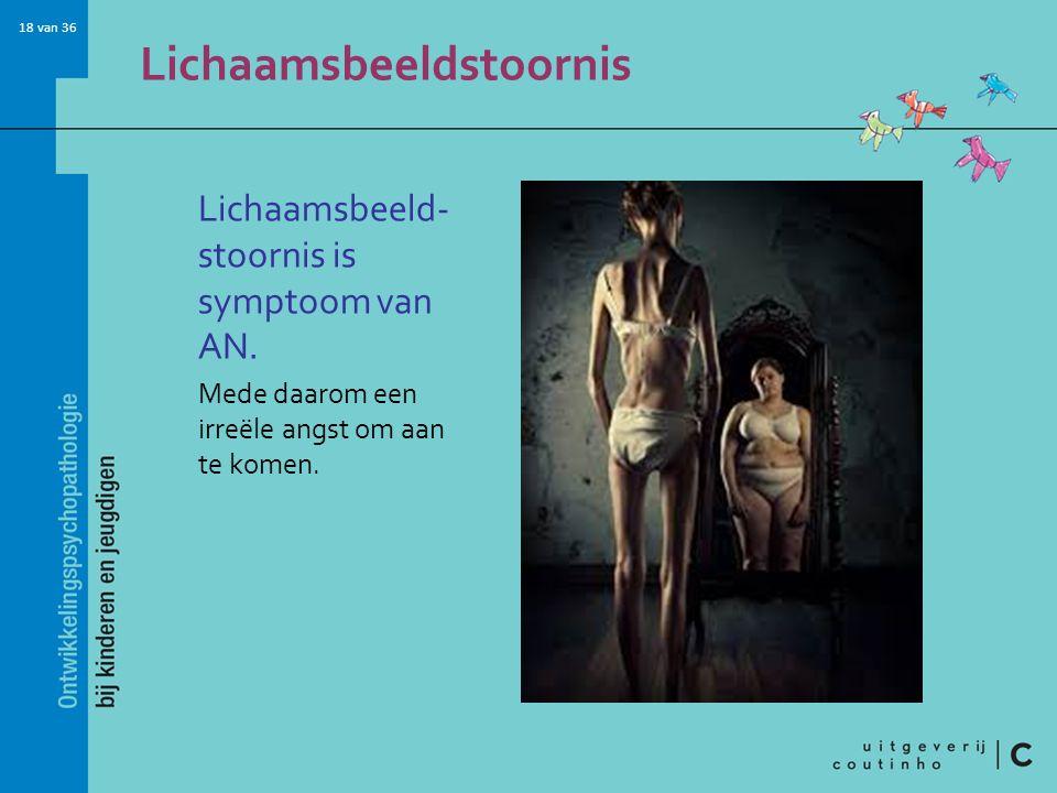18 van 36 Lichaamsbeeldstoornis Lichaamsbeeld- stoornis is symptoom van AN. Mede daarom een irreële angst om aan te komen.