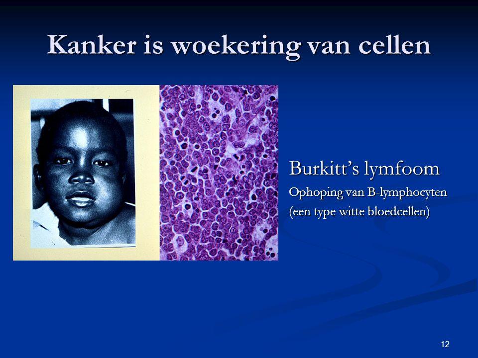 12 Kanker is woekering van cellen Burkitt's lymfoom Ophoping van B-lymphocyten (een type witte bloedcellen)