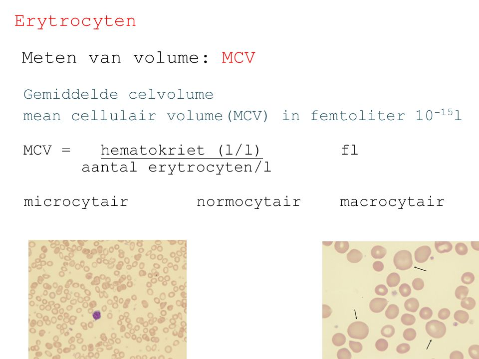 Erytrocyten Meten van volume: MCV Gemiddelde celvolume mean cellulair volume(MCV) in femtoliter 10 -15 l MCV = hematokriet (l/l) fl aantal erytrocyten