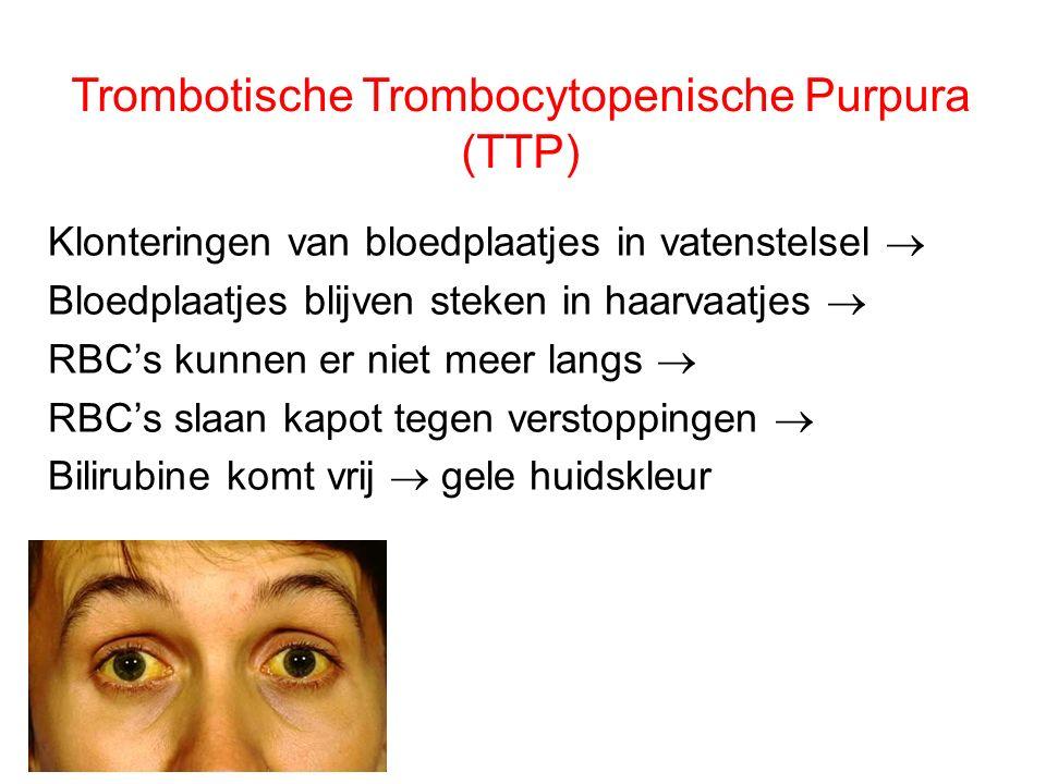 Trombotische Trombocytopenische Purpura (TTP) Klonteringen van bloedplaatjes in vatenstelsel  Bloedplaatjes blijven steken in haarvaatjes  RBC's kun