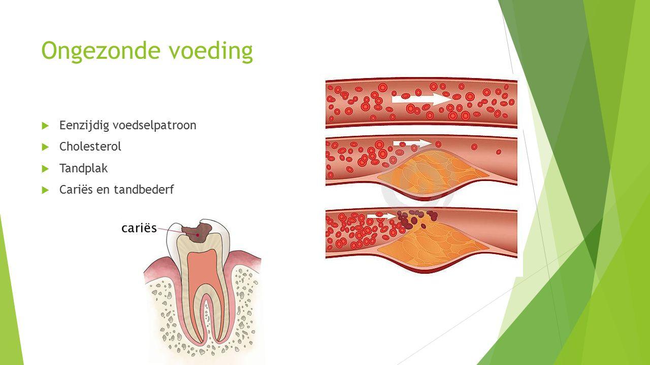 Ongezonde voeding  Eenzijdig voedselpatroon  Cholesterol  Tandplak  Cariës en tandbederf