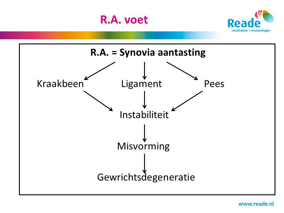 R.A. voet R.A. = Synovia aantasting Kraakbeen LigamentPees Instabiliteit Misvorming Gewrichtsdegeneratie