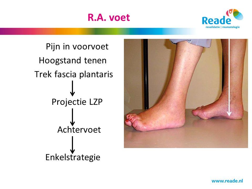 Pijn in voorvoet Hoogstand tenen Trek fascia plantaris Projectie LZP Achtervoet Enkelstrategie
