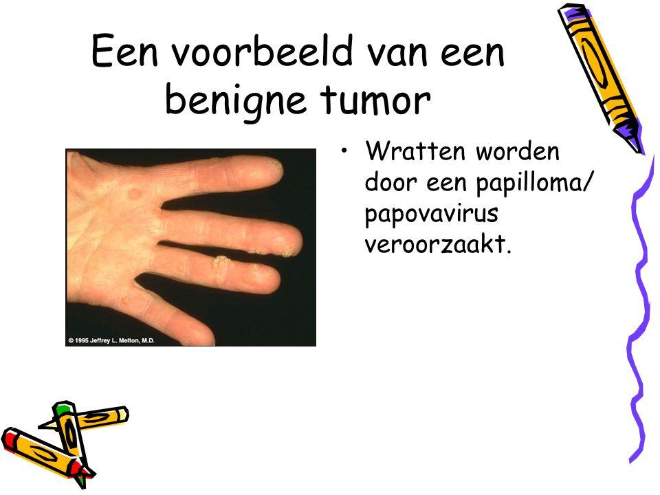 Een voorbeeld van een benigne tumor Wratten worden door een papilloma/ papovavirus veroorzaakt.