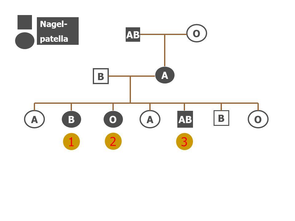75 AB O B B A BO AO Nagel- patella A 1 2 3