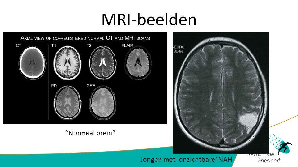 MRI-beelden Jongen met 'onzichtbare' NAH Normaal brein