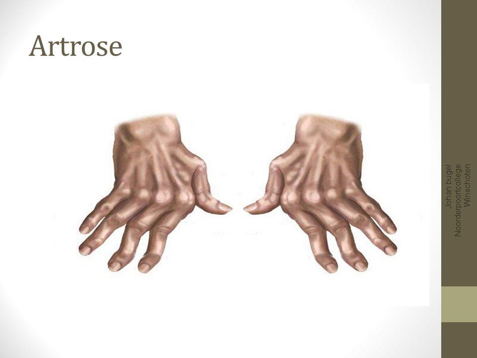 Artrose Gewrichtsslijtage Over elkaar schuren van botten Pijn tijdens beweging Stijf en stram gevoel Standsverandering Bewegingsbeperking Johan bugel Noorderpoortcollege Winschoten