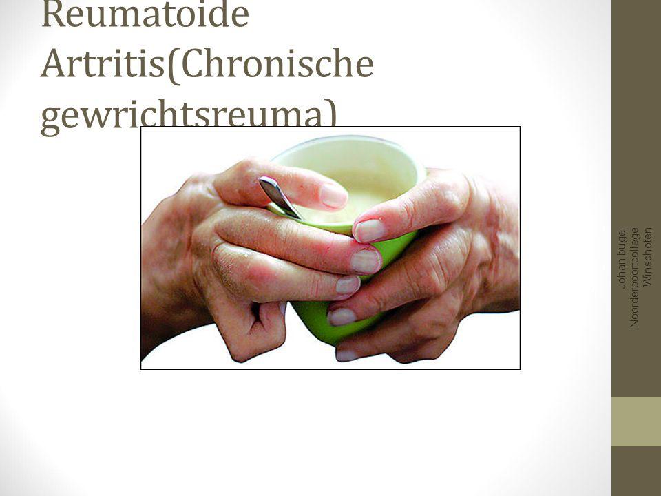 Reuma Ontsteking gewrichtskapsel Daardoor productie ontstekingsvocht Aantasting kraakbeen en botten Meestal chronische aandoening