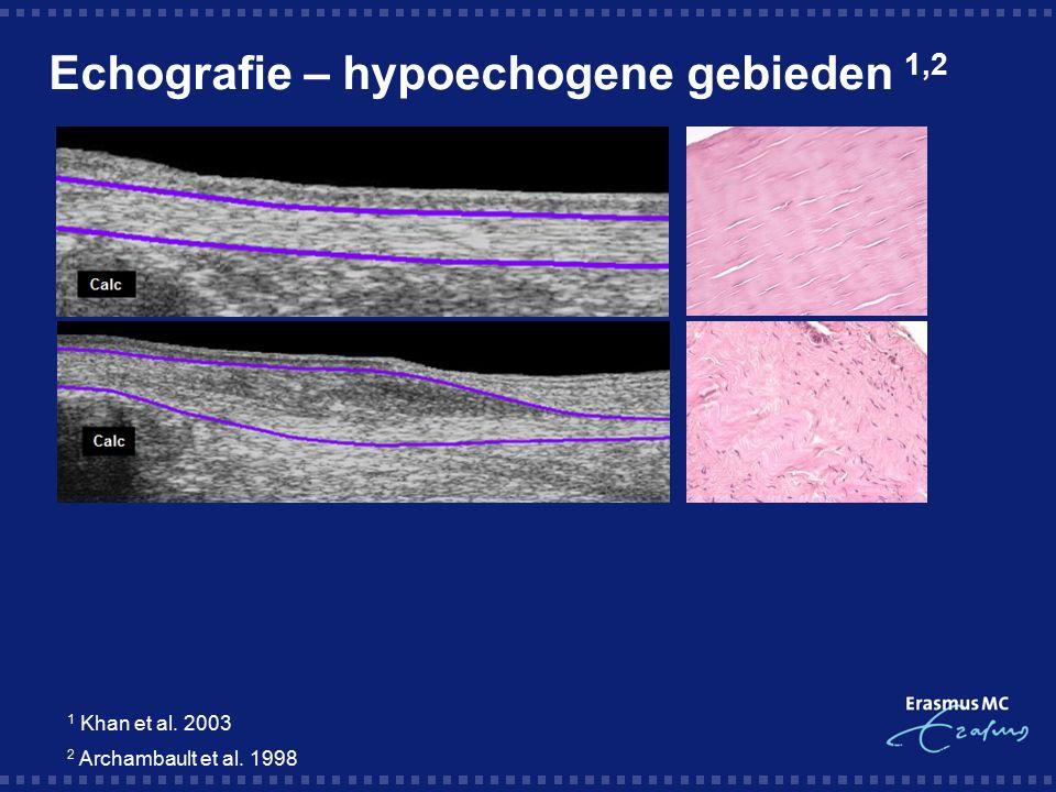 Echografie – hypoechogene gebieden 1,2 1 Khan et al. 2003 2 Archambault et al. 1998