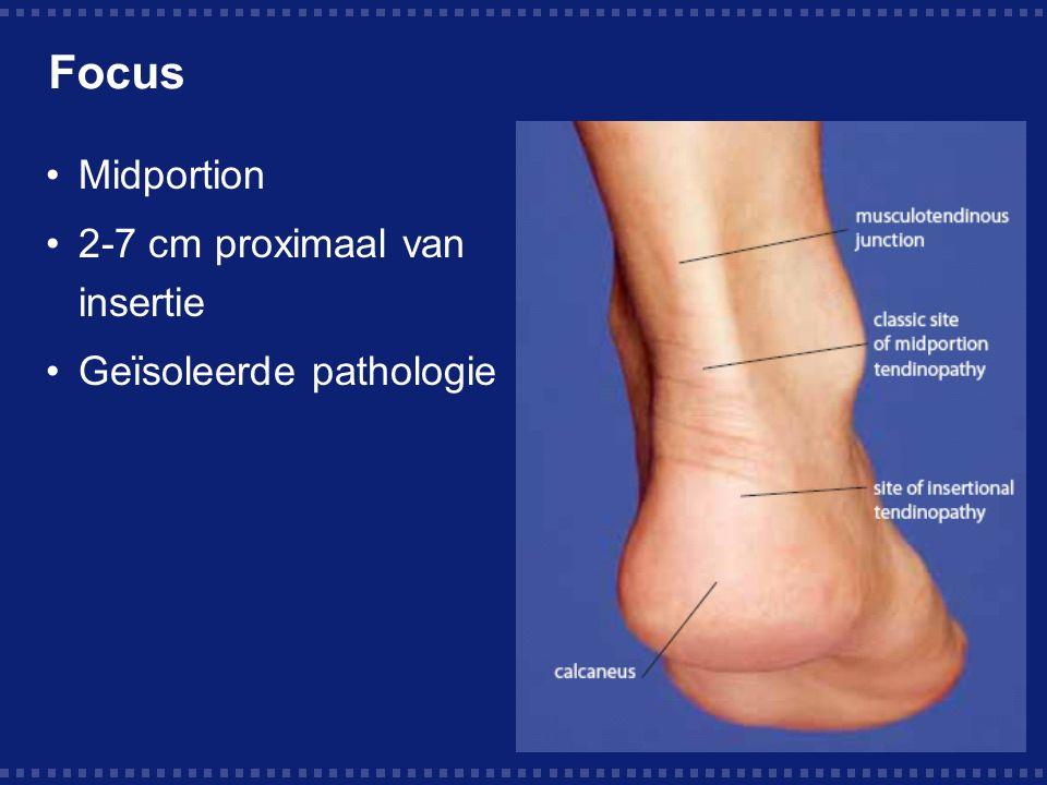 Focus Midportion 2-7 cm proximaal van insertie Geïsoleerde pathologie