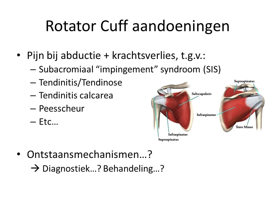 Acromion & Supraspinatus Dr.Neer, 1972: – impingement syndroom – Inklemming t.h.v.
