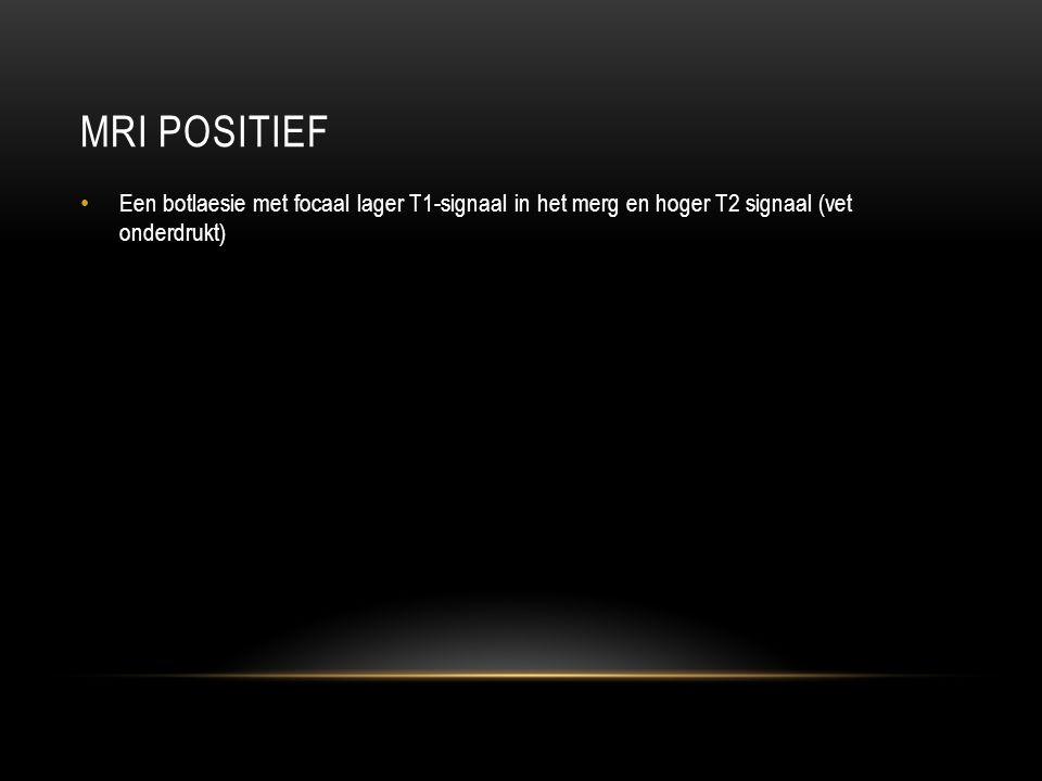 MRI POSITIEF Een botlaesie met focaal lager T1-signaal in het merg en hoger T2 signaal (vet onderdrukt)