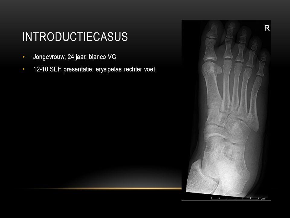 INTRODUCTIECASUS Jongevrouw, 24 jaar, blanco VG 12-10 SEH presentatie: erysipelas rechter voet