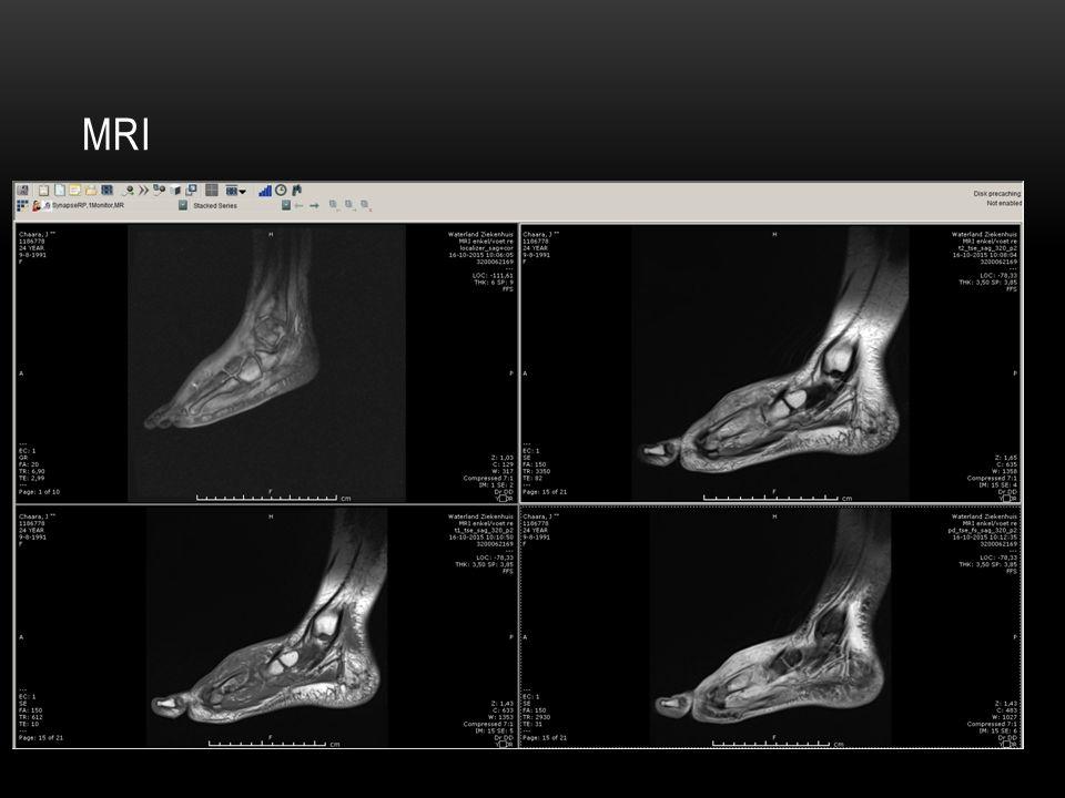 INTRODUCTIECASUS Jongevrouw, 24 jaar, blanco VG 12-10 SEH presentatie: erysipelas rechter voet  Opname met flucloxacilline 1000mg 4dd IV 15-10 ICC chirurgie: niet afnemende pijn en zwelling 16-10 MRI  abcesvorming met tekenen van osteomyelitis.