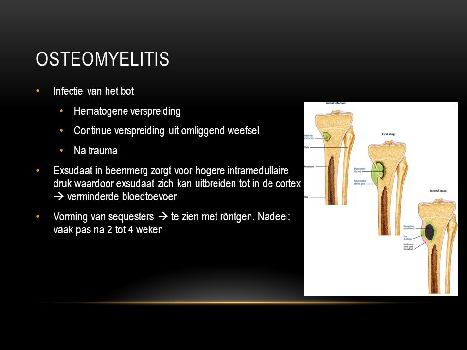 BRONNEN http://www.uptodate.com/contents/overview-of-osteomyelitis-in- adults?source=search_result&search=osteomyelitis&selectedTitle=1%7E150#H7 Clinical Inquiry: What s the best test for underlying osteomyelitis in patients with diabetic foot ulcers.