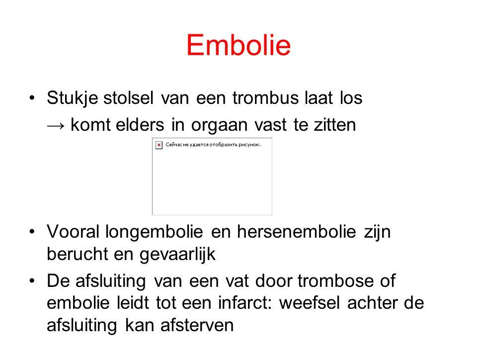 Embolie Stukje stolsel van een trombus laat los → komt elders in orgaan vast te zitten Vooral longembolie en hersenembolie zijn berucht en gevaarlijk De afsluiting van een vat door trombose of embolie leidt tot een infarct: weefsel achter de afsluiting kan afsterven