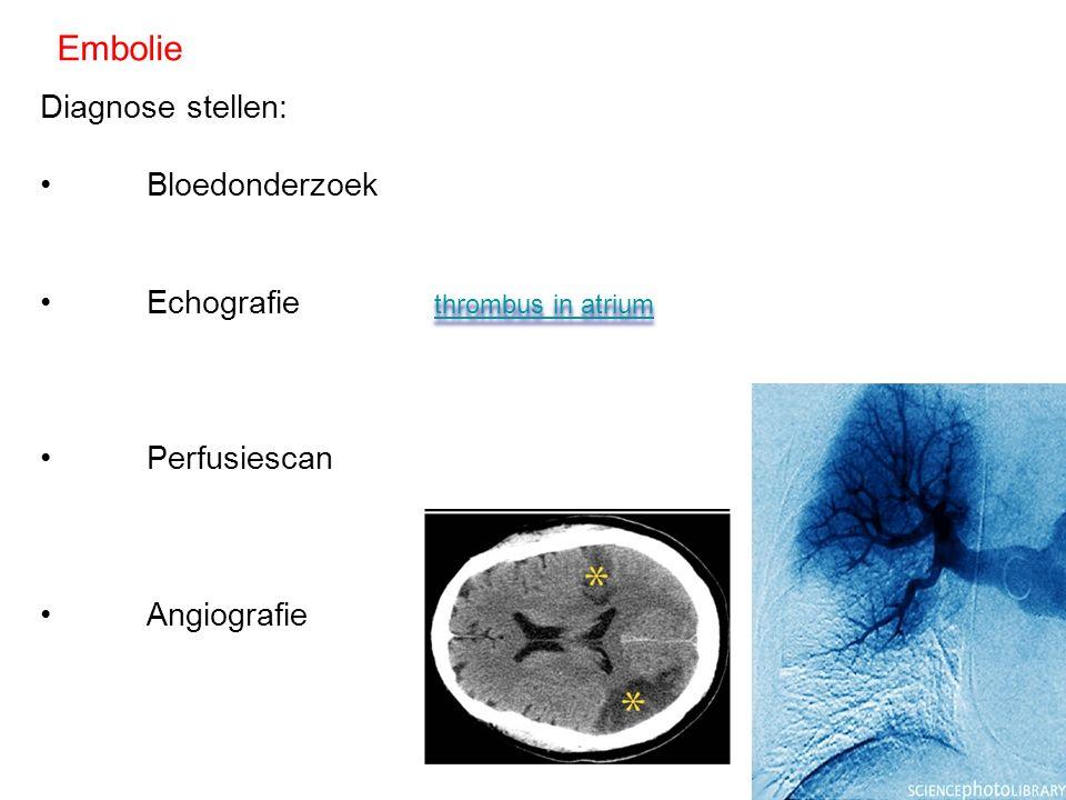 Embolie Diagnose stellen: Bloedonderzoek Echografie Perfusiescan Angiografie thrombus in atrium