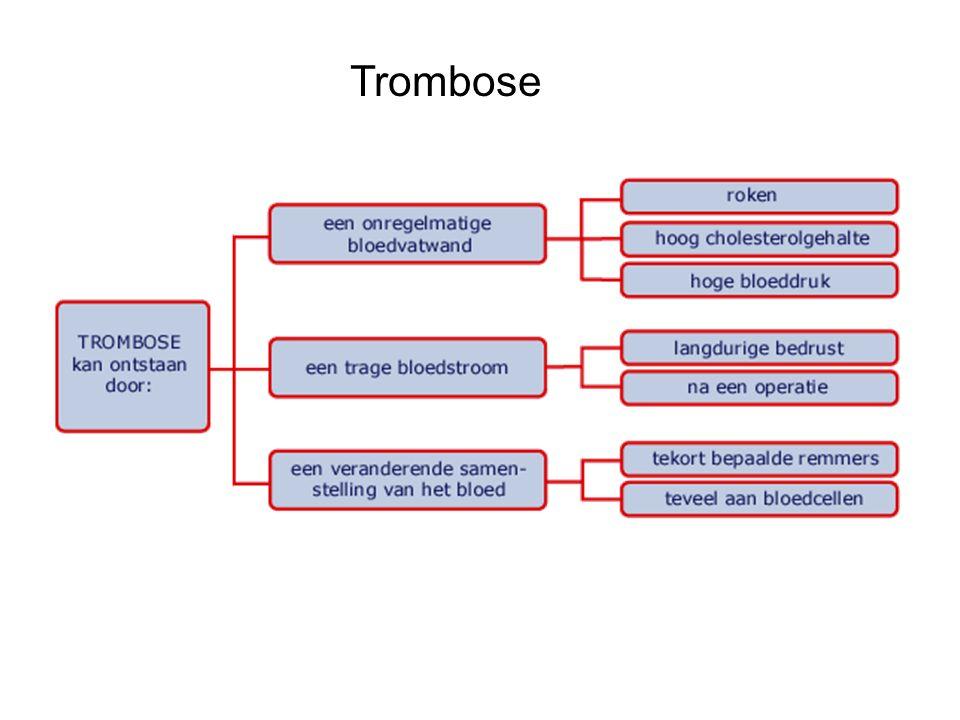 Soorten trombose Diep veneuze trombose: trombose in aderen In slagader: arteriële trombose Embolie