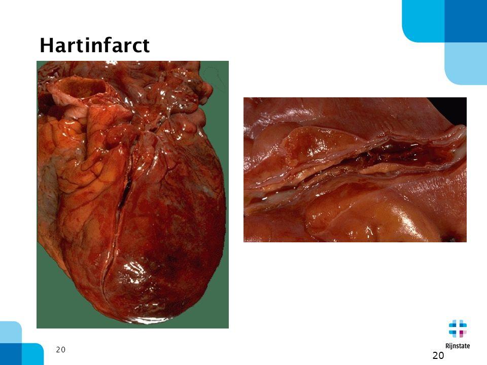 20 Hartinfarct