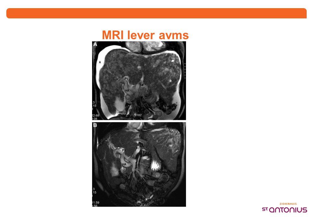 MRI lever avms