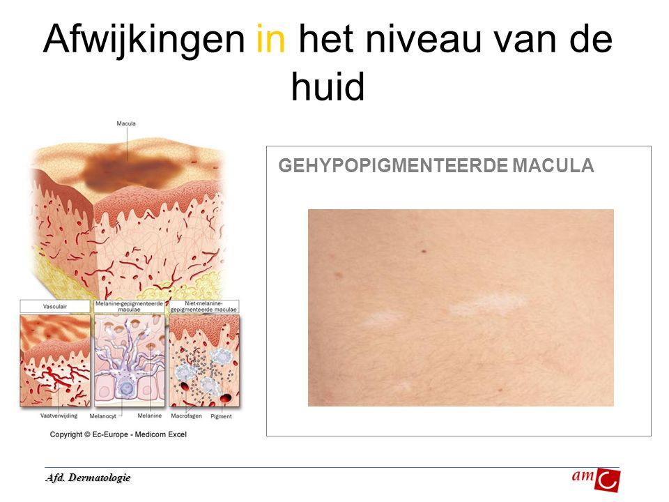 Afwijkingen in het niveau van de huid GEHYPOPIGMENTEERDE MACULA Afd. Dermatologie