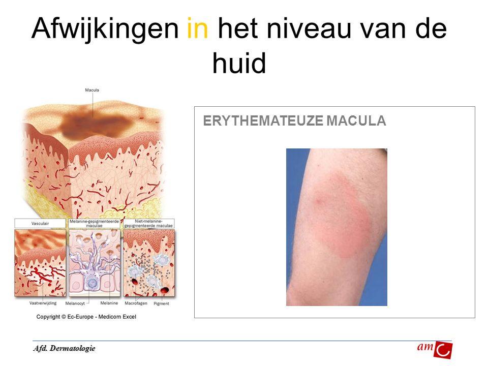 Afwijkingen in het niveau van de huid ERYTHEMATEUZE MACULA Afd. Dermatologie