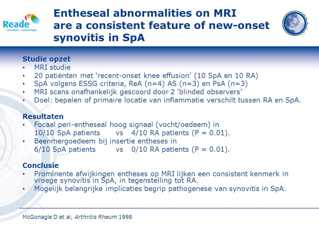 Entheseal abnormalities on MRI are a consistent feature of new-onset synovitis in SpA Studie opzet MRI studie 20 patiënten met 'recent-onset knee effu